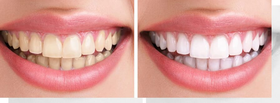 Teeth Whitening Before & After